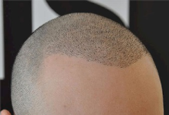 Head Hair Tattoo Bald