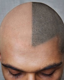 head-hair-tattoo-half