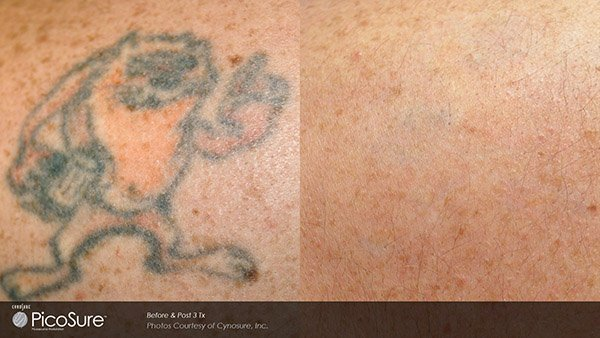 Laser Focus Laser Tattoo Removal