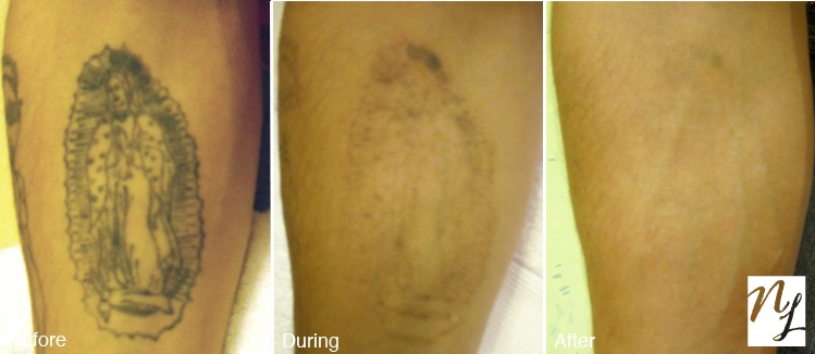 New Look Laser Tattoo Removal Before and After